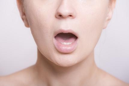 口内炎の女性