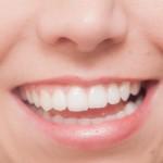 大損する前に!前歯のインプラント費用は保険を使える?